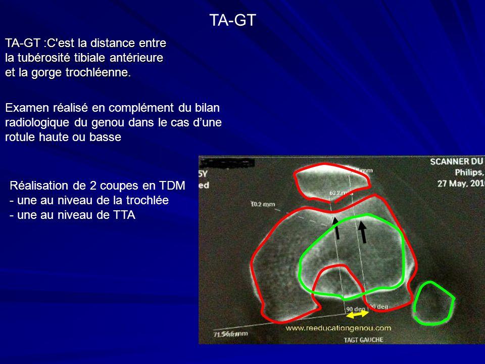 TA-GT :C'est la distance entre la tubérosité tibiale antérieure et la gorge trochléenne. TA-GT Examen réalisé en complément du bilan radiologique du g