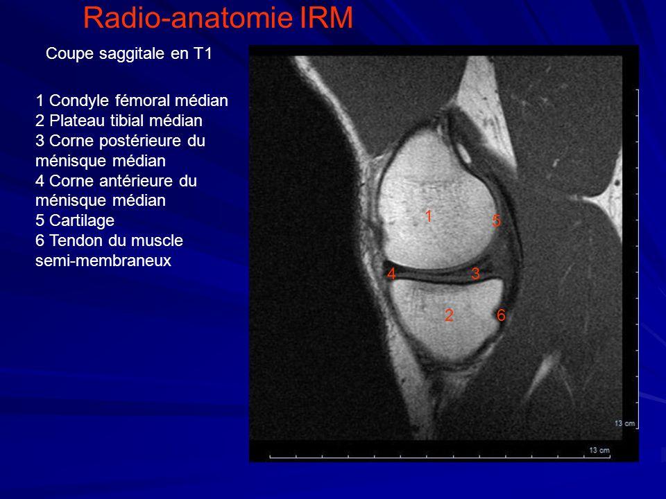 1 4 2 3 5 6 1 Condyle fémoral médian 2 Plateau tibial médian 3 Corne postérieure du ménisque médian 4 Corne antérieure du ménisque médian 5 Cartilage