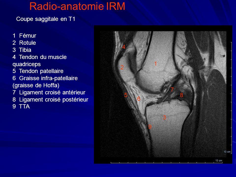 1 4 2 3 5 6 1 Fémur 2 Rotule 3 Tibia 4 Tendon du muscle quadriceps 5 Tendon patellaire 6 Graisse infra-patellaire (graisse de Hoffa) 7 Ligament croisé