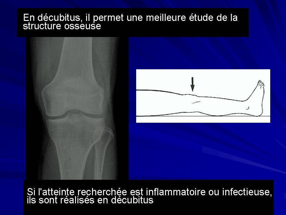 Séquences classiques Écho de spin T2 fat sat Image typique de contusion osseuse