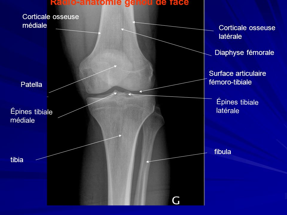Radio-anatomie genou de face Corticale osseuse latérale Diaphyse fémorale Patella Épines tibiale latérale fibula tibia Corticale osseuse médiale Épine