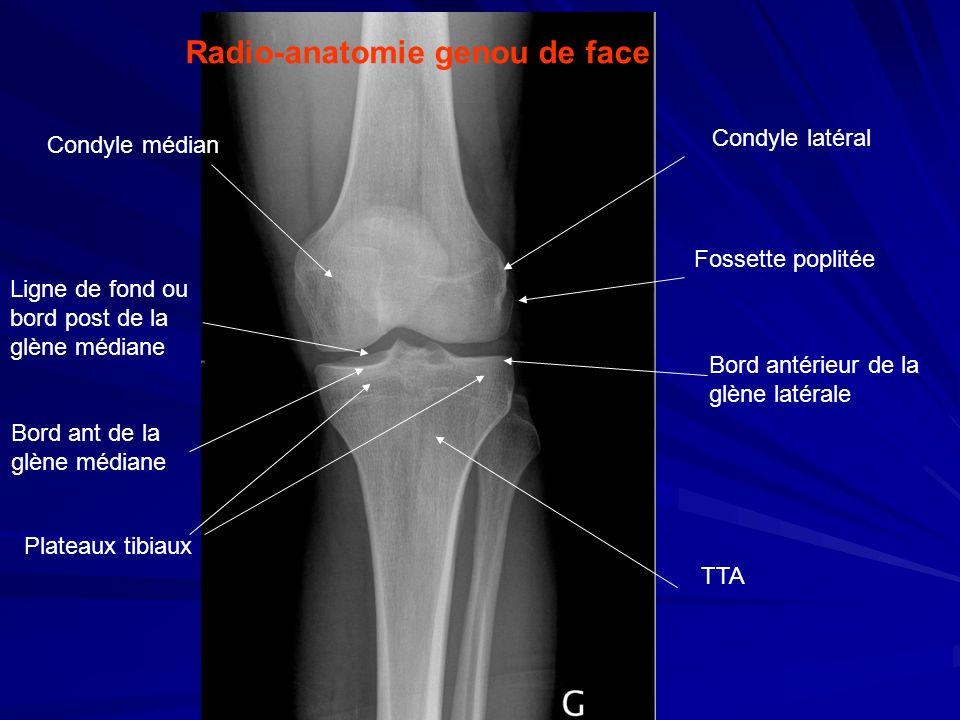Radio-anatomie genou de face Bord antérieur de la glène latérale Plateaux tibiaux Condyle médian Ligne de fond ou bord post de la glène médiane Bord a