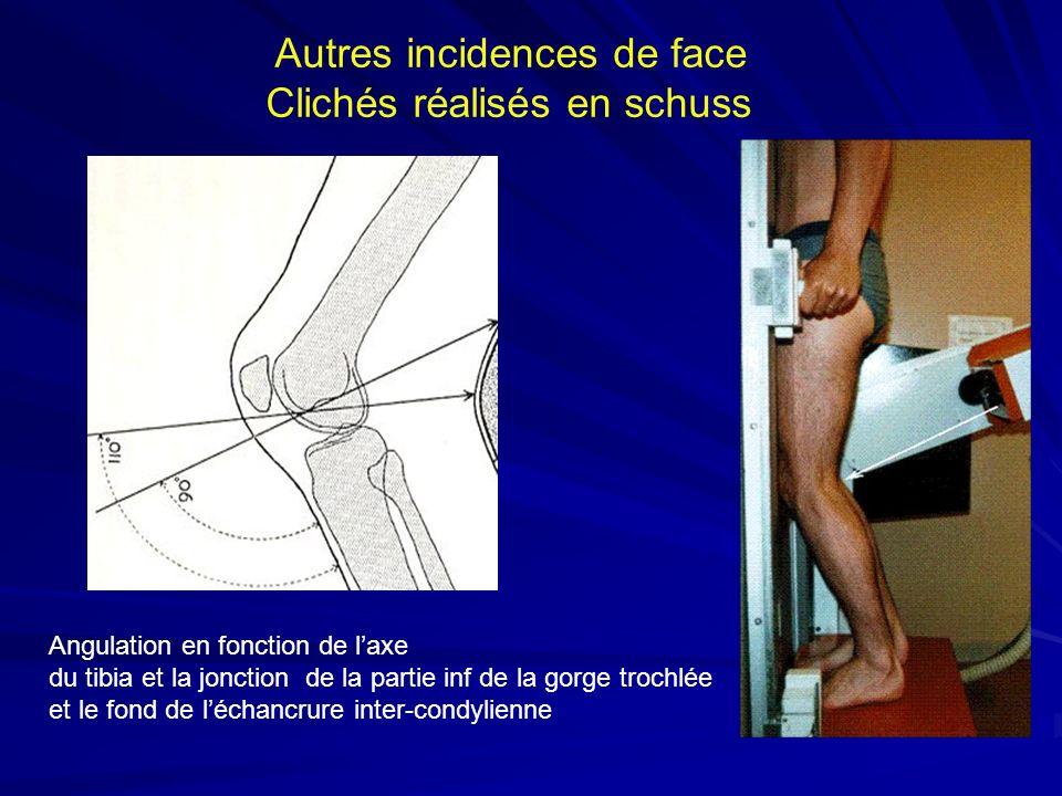Autres incidences de face Clichés réalisés en schuss Angulation en fonction de laxe du tibia et la jonction de la partie inf de la gorge trochlée et l