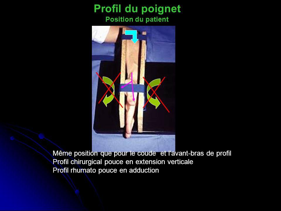 Profil du poignet Position du patient Même position que pour le coude et lavant-bras de profil Profil chirurgical pouce en extension verticale Profil