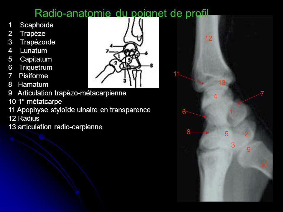 1 Scaphoïde 2 Trapèze 3 Trapézoïde 4 Lunatum 5 Capitatum 6Triquetrum 7Pisiforme 8 Hamatum 9 Articulation trapèzo-métacarpienne 10 1° métatcarpe 11 Apo