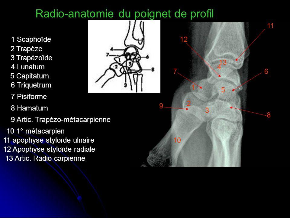 1 2 3 4 5 67 8 9 Radio-anatomie du poignet de profil 10 11 12 13 1 Scaphoïde 2 Trapèze 3 Trapézoïde 4 Lunatum 5 Capitatum 6 Triquetrum 7 Pisiforme 8 H