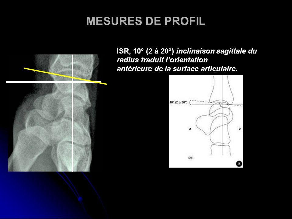MESURES DE PROFIL ISR, 10° (2 à 20°) inclinaison sagittale du radius traduit lorientation antérieure de la surface articulaire.