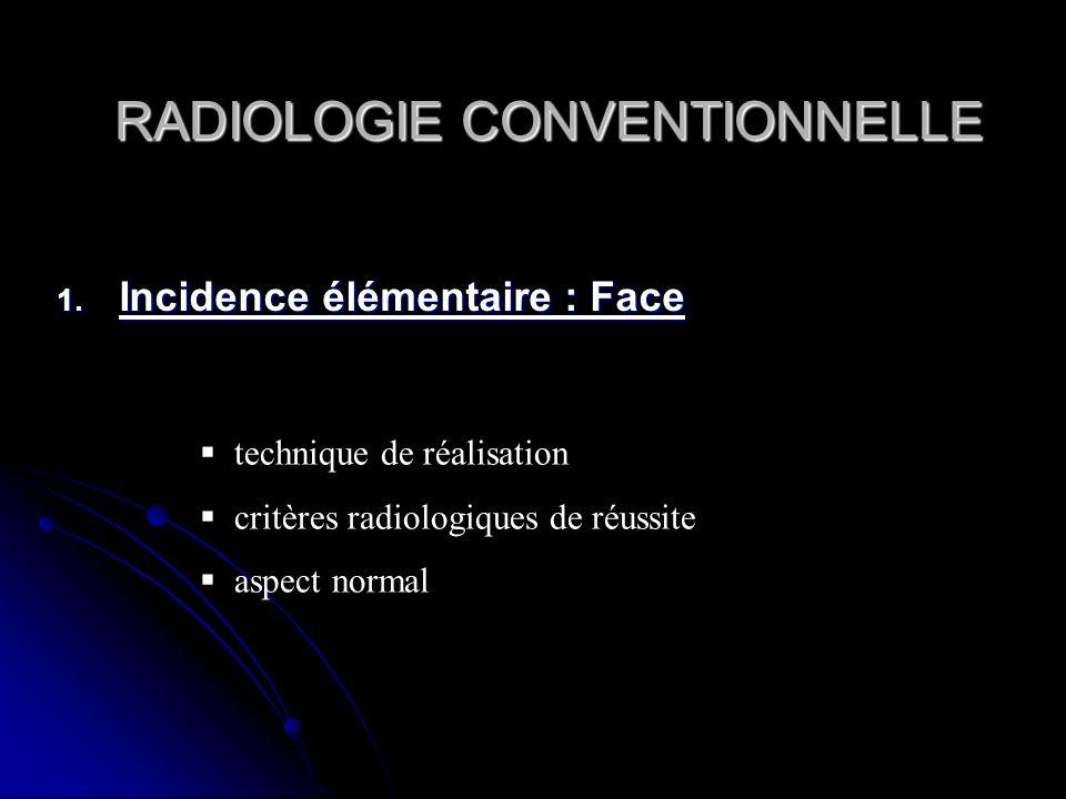 RADIOLOGIE CONVENTIONNELLE RADIOLOGIE CONVENTIONNELLE 1. Incidence élémentaire : Face technique de réalisation critères radiologiques de réussite aspe