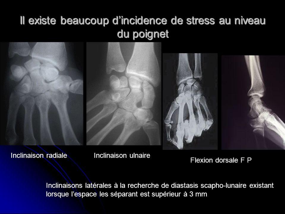 Il existe beaucoup dincidence de stress au niveau du poignet Inclinaison radialeInclinaison ulnaire Flexion dorsale F P Inclinaisons latérales à la re