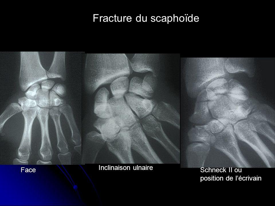 Fracture du scaphoïde Face Inclinaison ulnaire Schneck II ou position de lécrivain