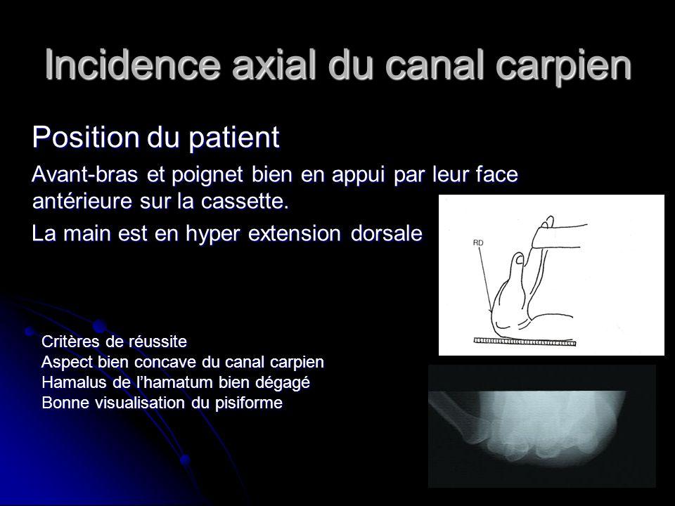 Incidence axial du canal carpien Position du patient Position du patient Avant-bras et poignet bien en appui par leur face antérieure sur la cassette.