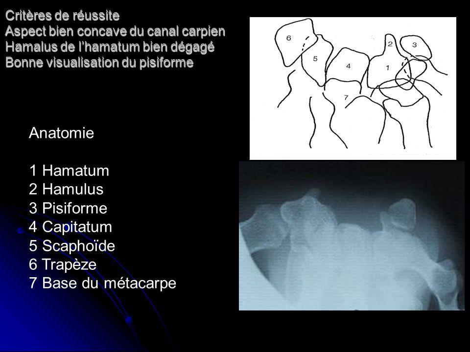 Critères de réussite Aspect bien concave du canal carpien Hamalus de lhamatum bien dégagé Bonne visualisation du pisiforme Anatomie 1 Hamatum 2 Hamulu