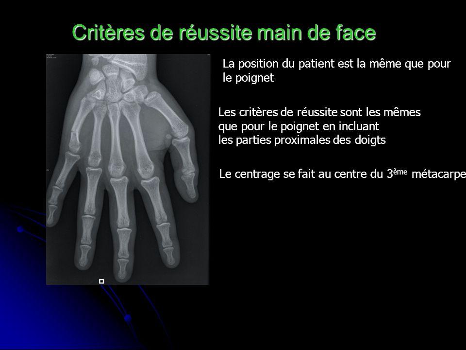 Critères de réussite main de face La position du patient est la même que pour le poignet Les critères de réussite sont les mêmes que pour le poignet e