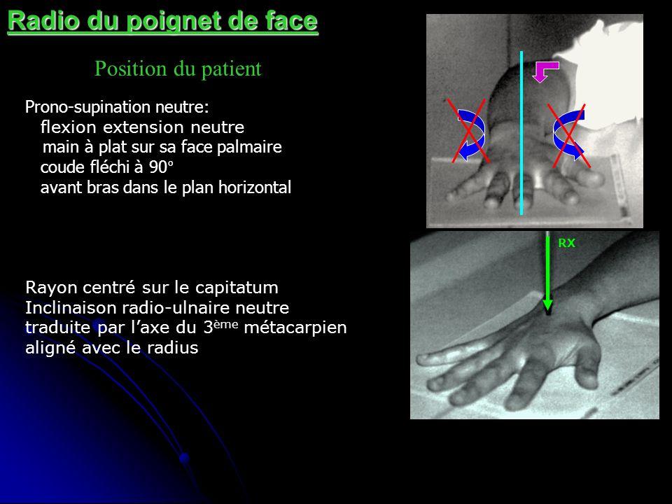 Radio du poignet de face Position du patient Prono-supination neutre: flexion extension neutre main à plat sur sa face palmaire coude fléchi à 90° ava