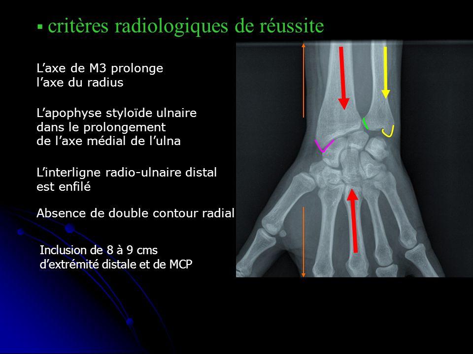 critères radiologiques de réussite Laxe de M3 prolonge laxe du radius Lapophyse styloïde ulnaire dans le prolongement de laxe médial de lulna Linterli