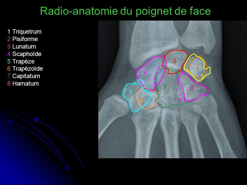 1 2 3 4 5 6 78 1 Triquetrum 2 Pisiforme 3 Lunatum 4 Scaphoïde 5 Trapèze 6 Trapèzoïde 7 Capitatum 8 Hamatum Radio-anatomie du poignet de face