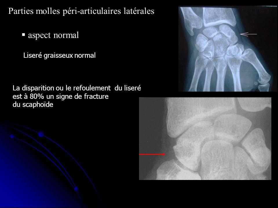 aspect normal Parties molles péri-articulaires latérales Liseré graisseux normal La disparition ou le refoulement du liseré est à 80% un signe de frac