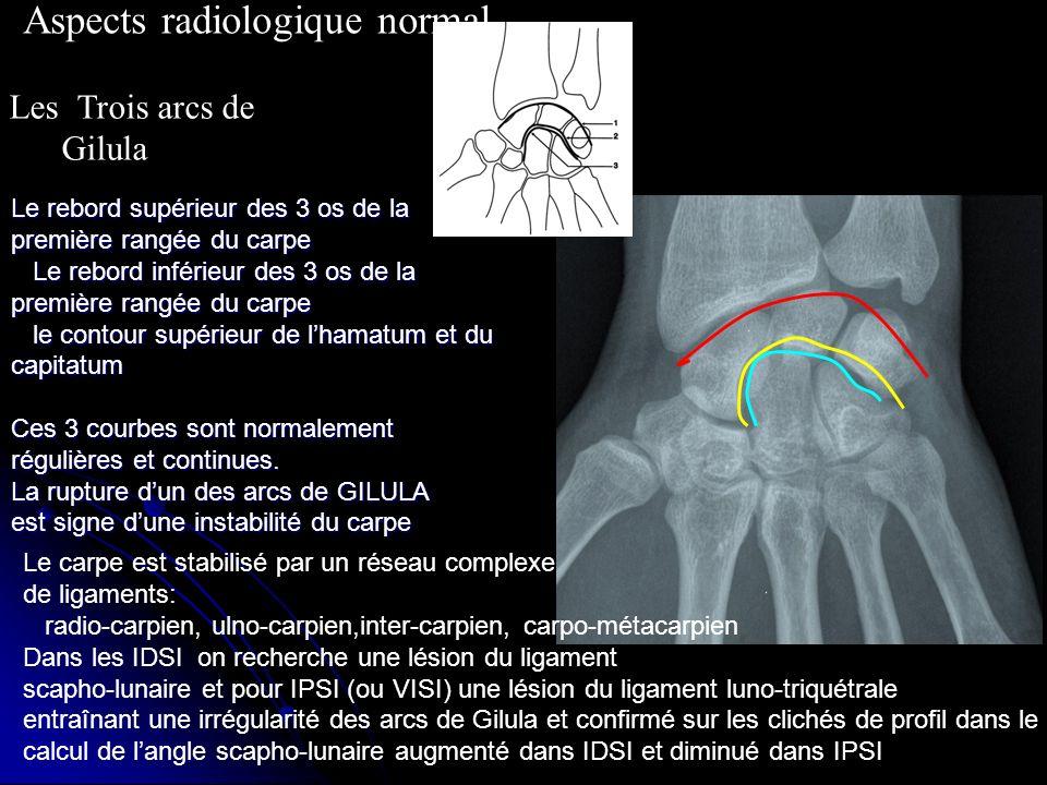 Aspects radiologique normal Les Trois arcs de Gilula Le rebord supérieur des 3 os de la première rangée du carpe Le rebord inférieur des 3 os de la pr