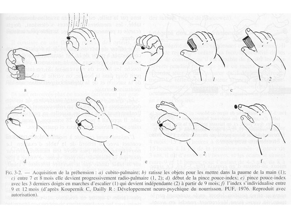 Quand sinquiéter ? Poings fermés Gesticulation asymétrique, pauvre Microcéphalie Absence de réaction au bruit Mauvais contact oculaire Hypotonie axial