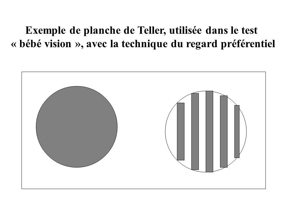 La fonction visuelle Paramètres objectifs : A.V. Motricité oculaire Champ visuel Vision binoculaire Contraste Basse vision