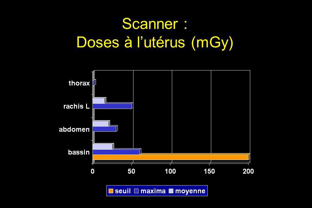 Scanner : Doses à lutérus (mGy)