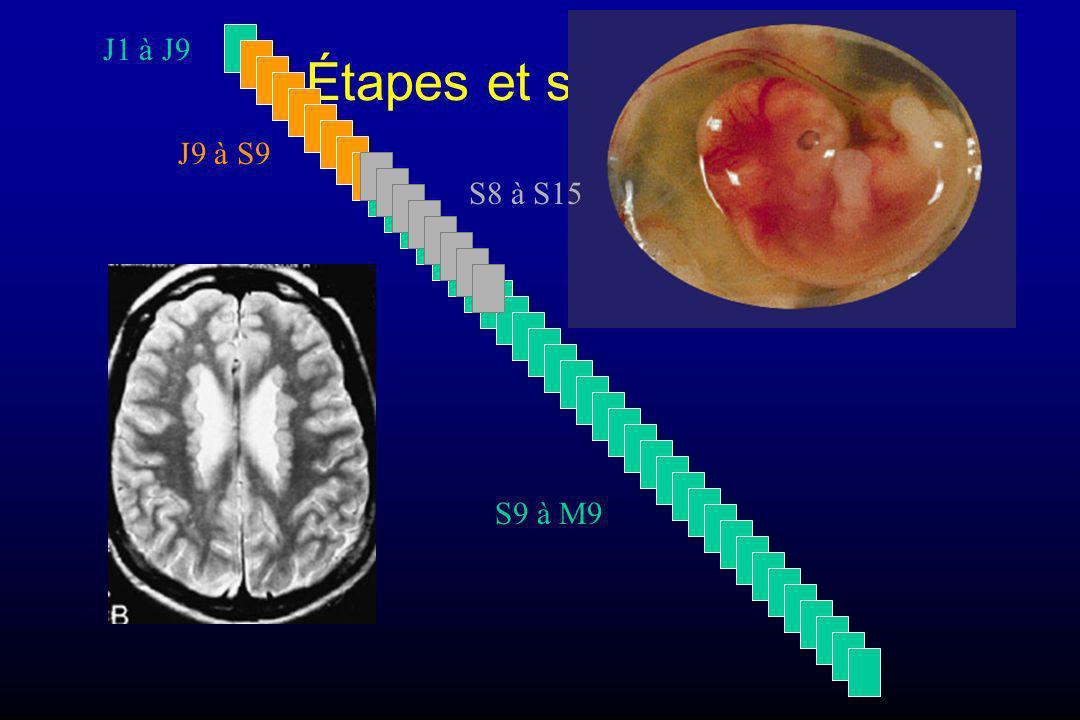 Effets malformatifs (tératogenèse) Avant l implantation –(J8 ou une semaine post-conception) Organogenèse –(du 9° jour au début de la 9° semaine post- conception) Maturation fœtale –(de la 9° semaine au 9° mois)
