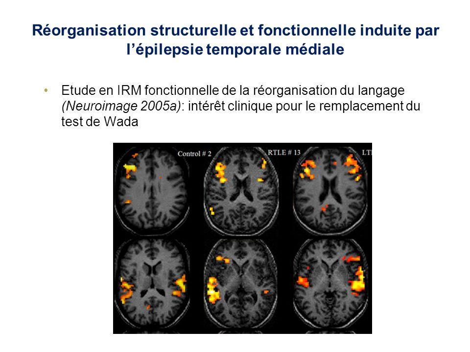Réorganisation structurelle et fonctionnelle induite par lépilepsie temporale médiale Etude en IRM du tenseur de diffusion de la réorganisation structurelle (Neuroimage 2005b): intérêt physiopathologique MD augmentée FA diminuée