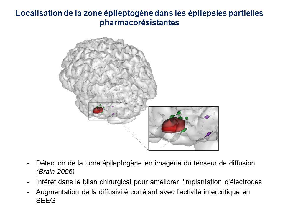 Diminution de lanisotropie dans le faisceau corticospinal Corrélée à la sévérité du score moteur dans le cortex prémoteur ventral, linsula, le corps calleux (JNNP 2007) Imagerie de diffusion pour létude de la physiopathologie de la sclérose latérale amyotrophique (SLA) FA diminuée Patients vs controlsCorrélation avec score moteur FA diminuée