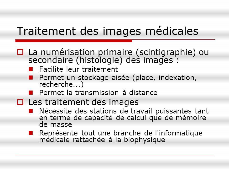 Traitement des images médicales La numérisation primaire (scintigraphie) ou secondaire (histologie) des images : Facilite leur traitement Permet un st