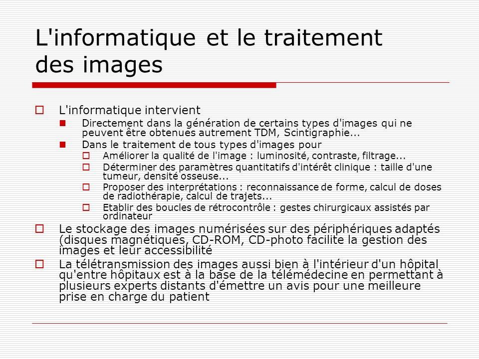 L'informatique et le traitement des images L'informatique intervient Directement dans la génération de certains types d'images qui ne peuvent être obt
