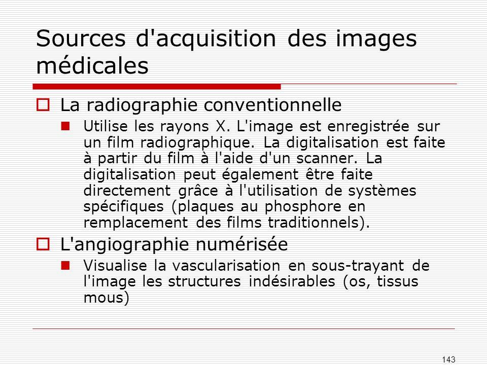 Sources d'acquisition des images médicales La radiographie conventionnelle Utilise les rayons X. L'image est enregistrée sur un film radiographique. L