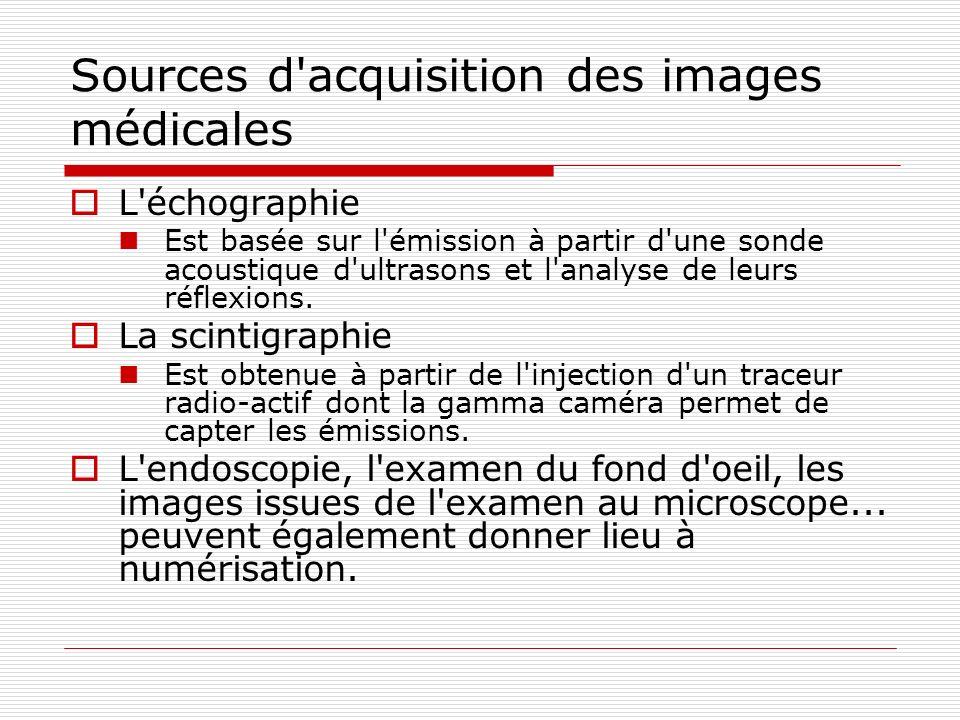 Sources d'acquisition des images médicales L'échographie Est basée sur l'émission à partir d'une sonde acoustique d'ultrasons et l'analyse de leurs ré