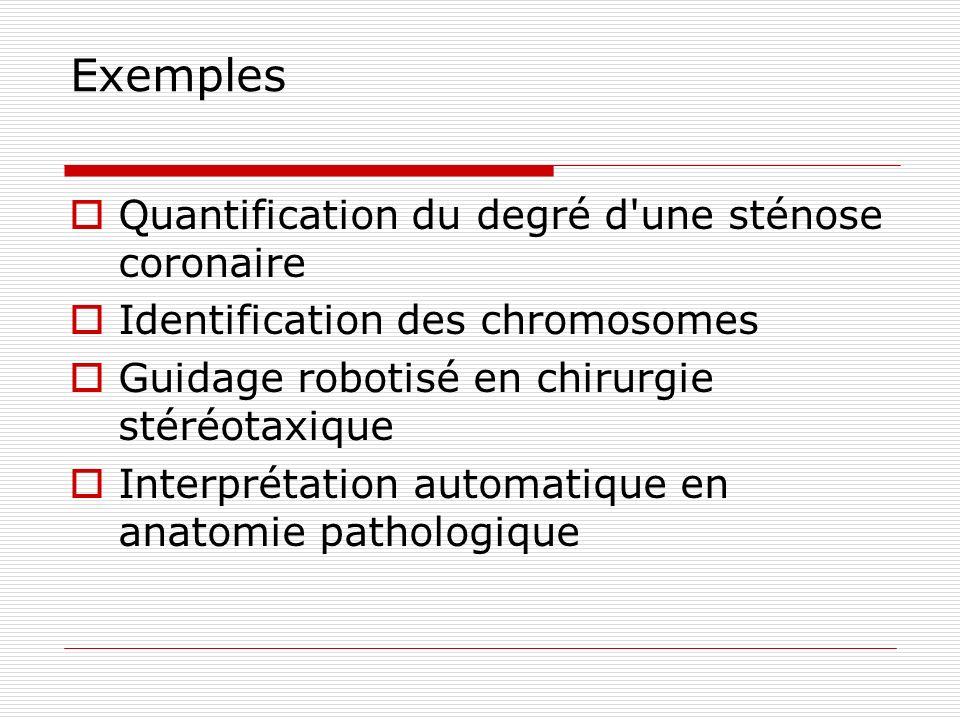 Exemples Quantification du degré d'une sténose coronaire Identification des chromosomes Guidage robotisé en chirurgie stéréotaxique Interprétation aut