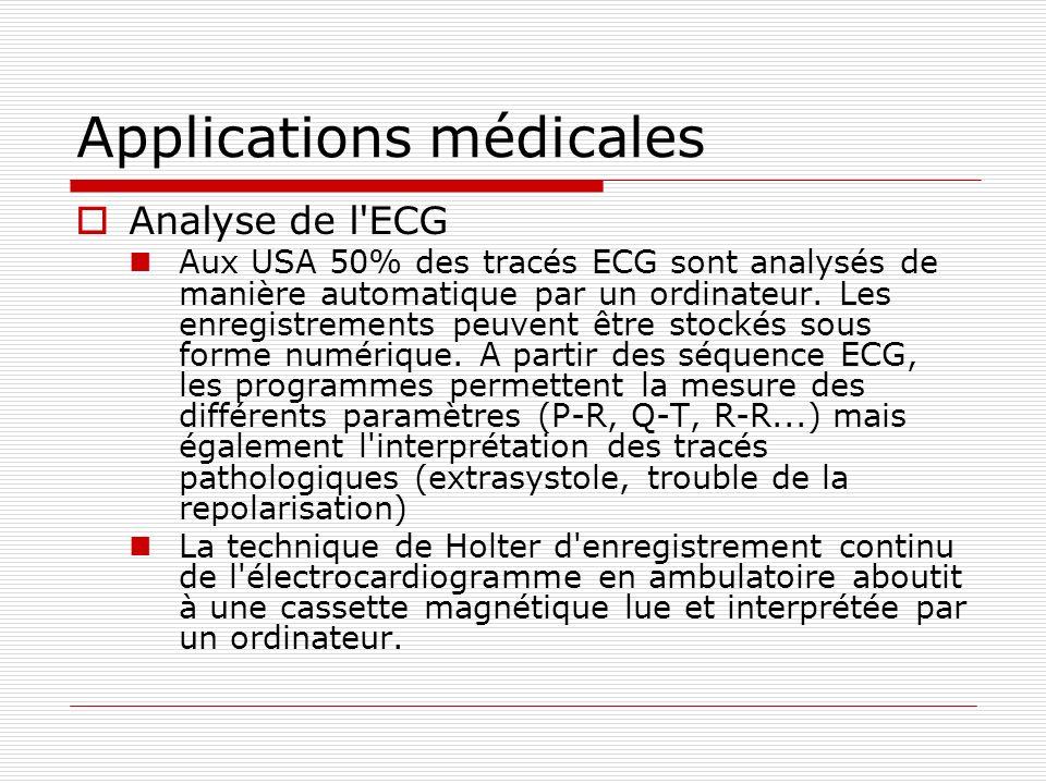 Applications médicales Analyse de l'ECG Aux USA 50% des tracés ECG sont analysés de manière automatique par un ordinateur. Les enregistrements peuvent