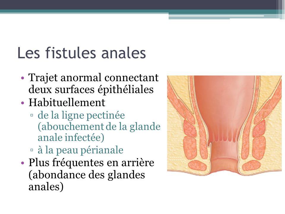 Les fistules anales Trajet anormal connectant deux surfaces épithéliales Habituellement de la ligne pectinée (abouchement de la glande anale infectée)