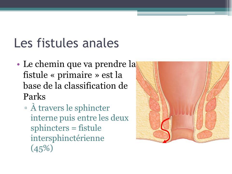 Les fistules anales Le chemin que va prendre la fistule « primaire » est la base de la classification de Parks À travers le sphincter interne puis ent