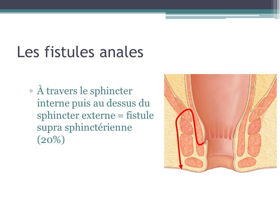 Les fistules anales À travers le sphincter interne puis au dessus du sphincter externe = fistule supra sphinctérienne (20%)