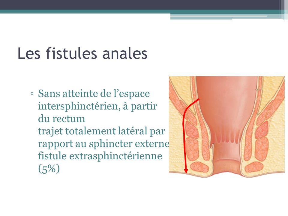 Les fistules anales Sans atteinte de lespace intersphinctérien, à partir du rectum trajet totalement latéral par rapport au sphincter externe fistule