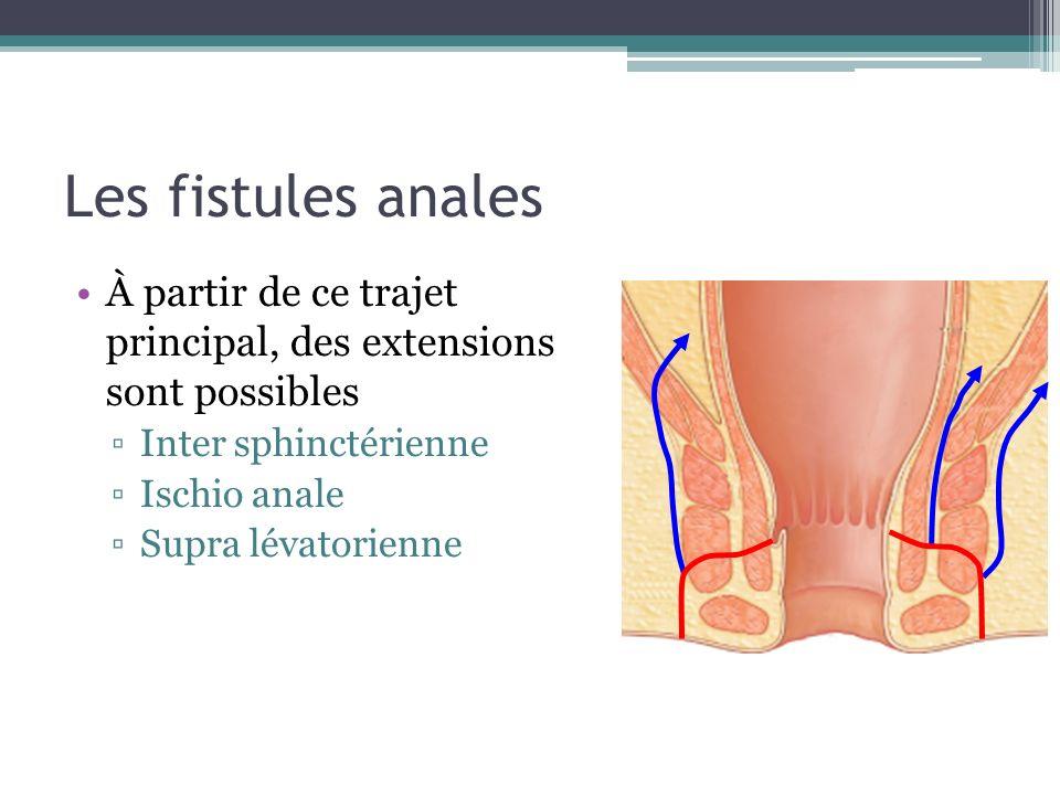 Les fistules anales À partir de ce trajet principal, des extensions sont possibles Inter sphinctérienne Ischio anale Supra lévatorienne