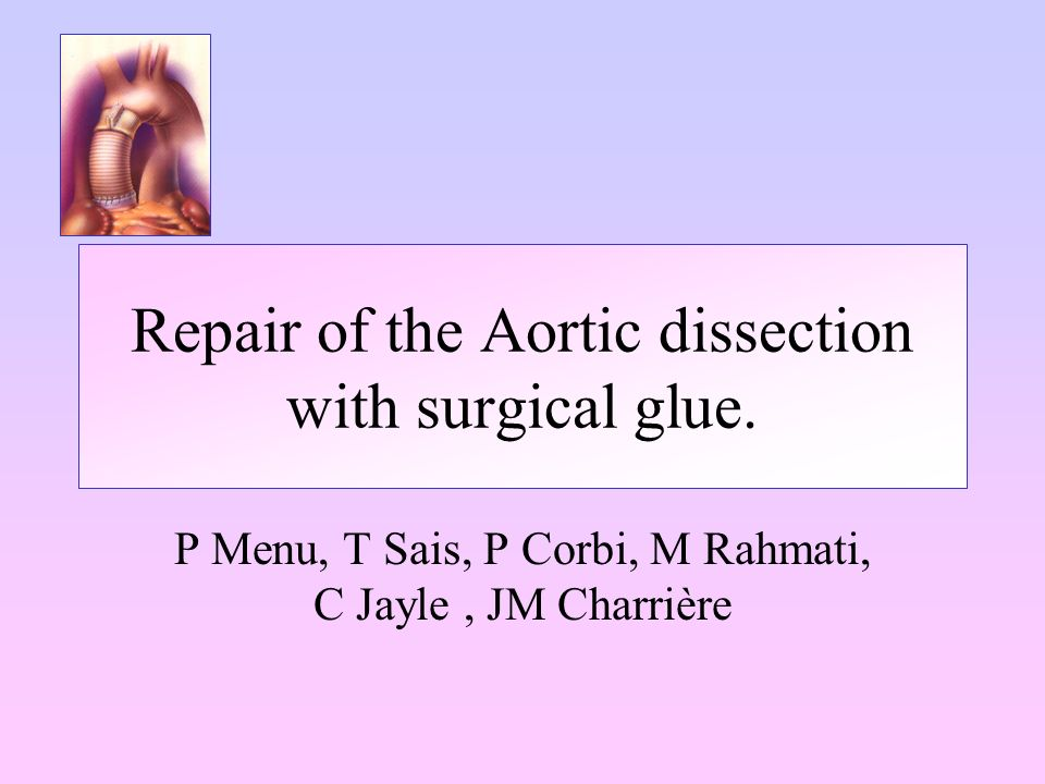 Conclusion Our experience suggest that open techniques and fibrin glue for distal anastomosis repair And anatomical reconstruction inspired by M Yacoub without glue for proximal repair improve the early and late outcomes of surgery for type A dissection of the aorta