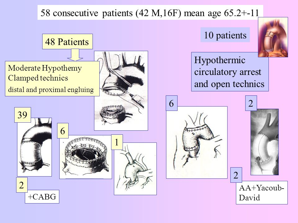 Hypothermic circulatory arrest and open technics 58 consecutive patients (42 M,16F) mean age 65.2+-11 10 patients +CABG Moderate Hypothemy Clamped tec