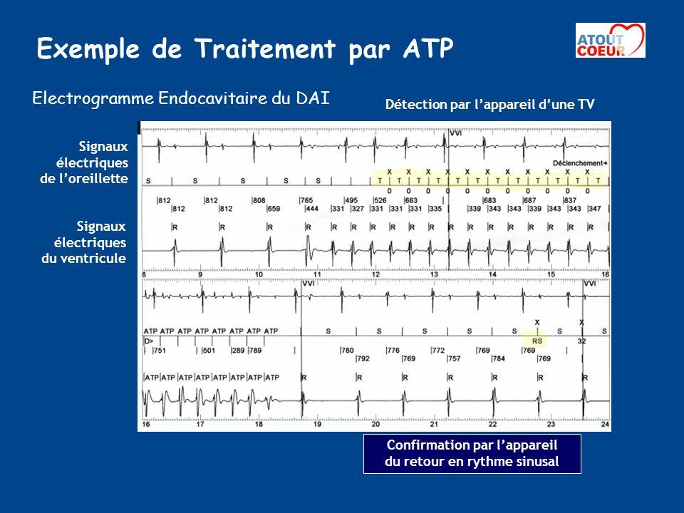 Exemple de Traitement par ATP Détection par lappareil dune TV Confirmation par lappareil du retour en rythme sinusal Thérapie ATP Signaux électriques