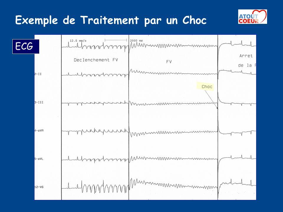 Exemple de Traitement par un Choc ECG