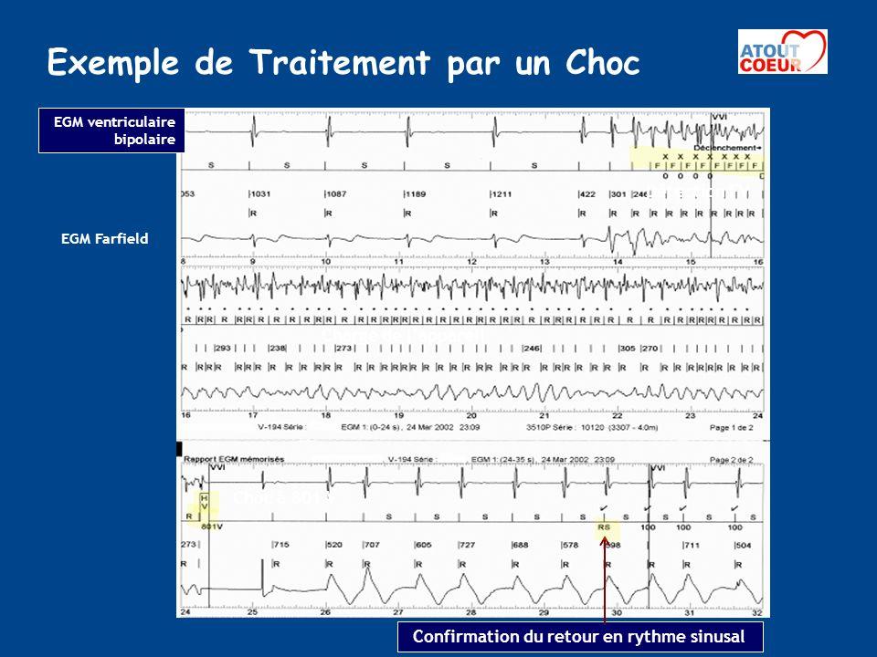 Exemple de Traitement par un Choc Confirmation du retour en rythme sinusal Détection FV Charge de lappareil EGM ventriculaire bipolaire Choc à 801 V E