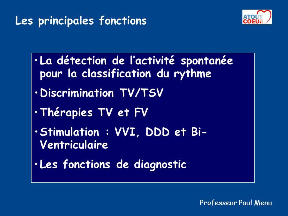 Les principales fonctions La détection de lactivité spontanée pour la classification du rythme Discrimination TV/TSV Thérapies TV et FV Stimulation :