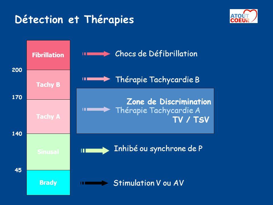 Détection et Thérapies Chocs de Défibrillation Fibrillation Thérapie Tachycardie B Tachy B 200 Inhibé ou synchrone de P Sinusal 140 Brady 45 Stimulati