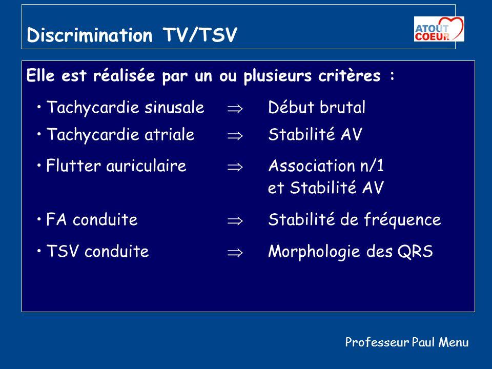 Discrimination TV/TSV Elle est réalisée par un ou plusieurs critères : Tachycardie sinusale Début brutal Tachycardie atriale Stabilité AV Flutter auri