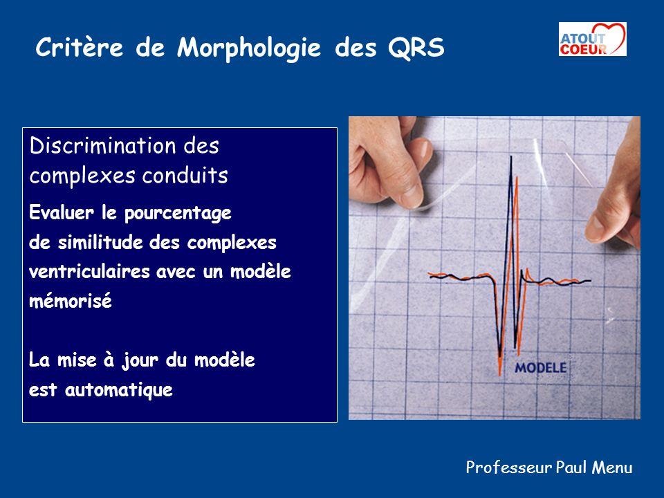 Critère de Morphologie des QRS Discrimination des complexes conduits Evaluer le pourcentage de similitude des complexes ventriculaires avec un modèle