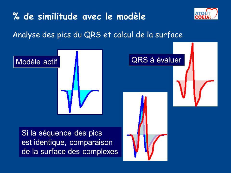 % de similitude avec le modèle Analyse des pics du QRS et calcul de la surface Modèle actif QRS à évaluer Si la séquence des pics est identique, compa