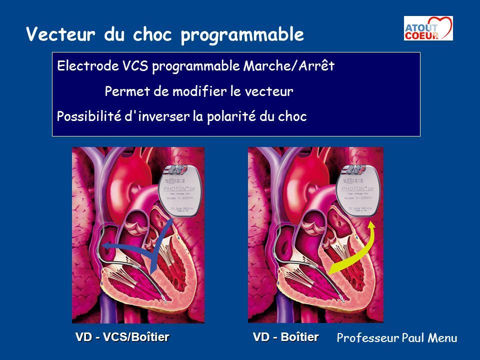 Vecteur du choc programmable Electrode VCS programmable Marche/Arrêt Permet de modifier le vecteur Possibilité d'inverser la polarité du choc VD - VCS